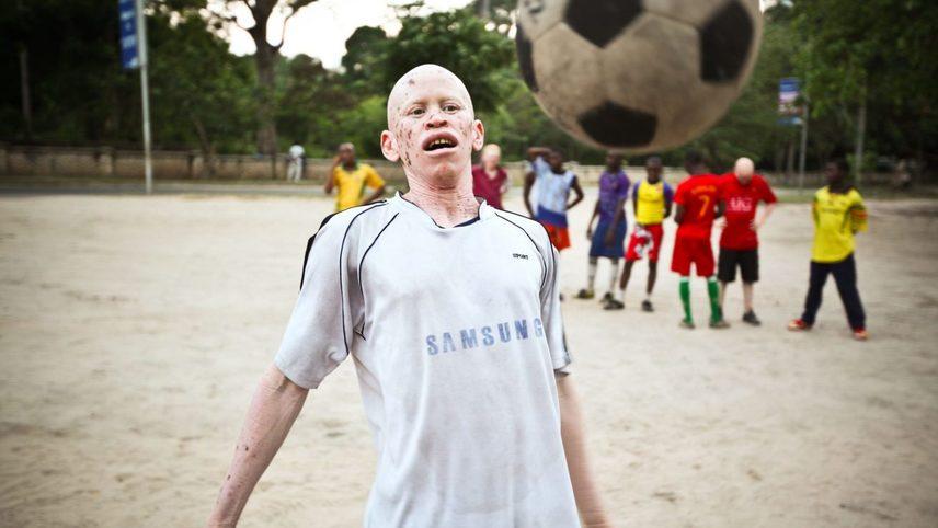 Albino United